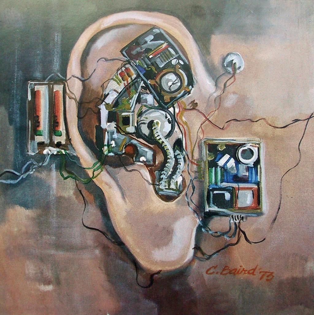 دربارۀ ناشنوایی و عمل کاشت حلزون گوش