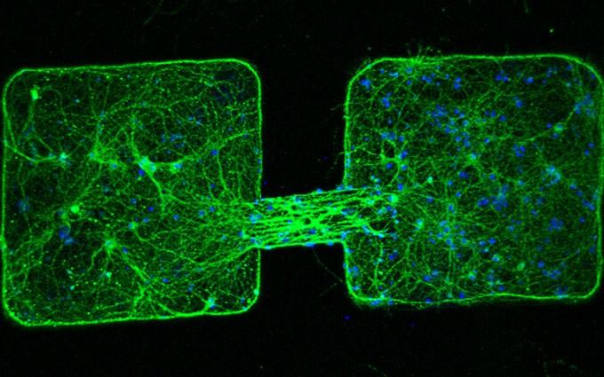 رشتههای عصبی از سلولهای عصبی موش در طول میکرو روبات رشد کرده و به توده عصبی دیگر متصل شدهاند.